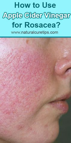 How to Use Apple Cider Vinegar for Rosacea