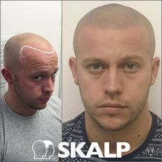 Before / After Scalp Micropigmentation with Skalp UK. For an appointment in the UK or Europe call 0845 094 1516 or email us at hello@www.skalp.com #Skalp #Hairloss #Solution #Treatment