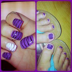 Zebra print nails and toes :))