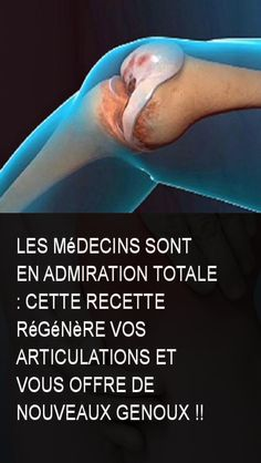 Les médecins sont en admiration totale : cette recette régénère vos articulations et vous offre de nouveaux genoux !! Anti Cellulite, Physique, Health And Beauty, Health Tips, The Cure, Health Fitness, Muscle, Parenting, Weight Loss