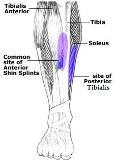 Recovering from Shin Splints
