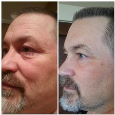 RODAN & FIELDS IS NOT JUST FOR WOMAN! MEN LOVE THESE PRODUCTS ALSO .. FIND OUT HOW YOU CAN GET FREE SHIPPING & 10% OFF http://www.jbarber2.myrandf.com