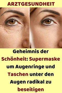 Secret of beauty: super mask around dark circles and pockets under the eyes r ... - New Ideas - #Beauty #Circles #Dark #Eyes #Ideas #Mask #pockets #Secret #Super