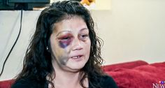 """8-year-old watches officer brutally beat mom, smash her face into a table after reports of 'yelling' ~ """"He came up to me and poked me,"""" Sinclair recalled. """"I was sitting on a chair in the kitchen and I jumped up and said you don't need to touch me.""""  The officer pulled out a baton, and beat her with it, she explained to CTV. She said he then smashed her face into a work table, and into the floor."""