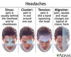 How to Get Rid of a Headache Fast (click for details)