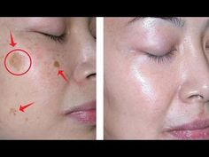 How to Remove Brown Spots on Face In Just 2 Nights - Homemade Methods) ! Today we're going to show you how to prepare several recipes that will remove dar. Age Spots On Face, Brown Spots On Face, Dark Spots, Skin Spots, Bleaching Your Skin, Cucumber Mask, Cucumber Juice, Potato Juice, Onion Juice