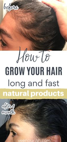 Follow these hair growth tips and grow your hair longer and thicker at home with a natural hair growth formula that is going to help you with your hair growth journey. These hair growth hacks are a game changer, take a look at these hair growth before and after pictures. These results were from using a natural hair growth oil, shop now and restore and strengthen your hair and scalp after hair loss, hair thinning or balding. Baby Hair Loss, Hair Loss Cure, Stop Hair Loss, Hair Loss Remedies, Prevent Hair Loss, Argan Oil For Hair Loss, Hair Loss Shampoo, How To Grow Your Hair Faster, How To Grow Natural Hair