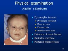 alagille syndrome, genetic d/o, facial features pictures - intrahepatic biliary atresia, Pulmonary Stenosis, Triangular Face (underdeveloped mandible), hypercholesterolemia with xanthomas, eye abnormalities, alcoholic stools.