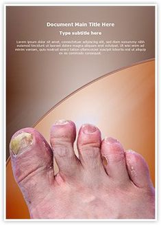 Toenail Mycosis MS Word Template is one of the best MS Word Templates by EditableTemplates.com. #EditableTemplates #Dirty #Barefoot #Ringworm Of The Foot #Terrified #Health #Mycosis #Big Toe #Antifungal #Pedicure #Smelly #Medical #Fungal #Cleanliness #Infection #Clotrimazole #Tinea Pedis #Toenail #Smell #Foot #Fungus #Toenail Mycosis #Stinky #Ugly #Painful #Pain