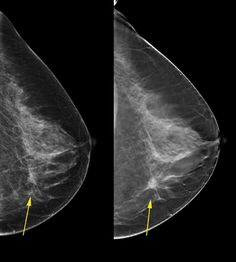 Benefits of 3-D Mammograms Last Over Time