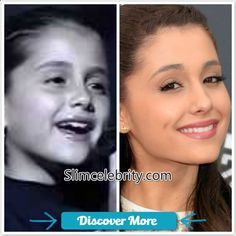 Before and after picture of Ariana Grande #fitnessbeforeandafterpictures, #weightlossbeforeandafterpictures, #beforeandafterweightlosspictures, #fitnessbeforeandafterpics, #weightlossbeforeandafterpics, #beforeandafterweightlosspics, #fitnessbeforeandafter, #weightlossbeforeandafter, #beforeandafterweightloss