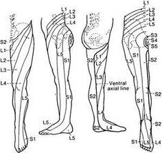 lumbar Spinal Stenosis Pain distribution -