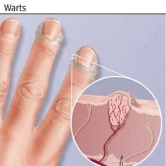 Natural Cure For Warts - How To Cure Warts Naturally | Home Remedies, Natural Remedy http://www.wartalooza.com