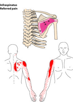There exits some similarity between symptoms of carpal tunnel syndrome (CTS) and myofascial pain related to trigger points (TPs) in the infraspinatus muscle. Infraspinatus Muscle, Nerve Conduction Study, Radial Nerve, Sensory Nerves, Ulnar Nerve, Dry Needling, Radiculopathy, Remedial Massage, Trigger Point Therapy