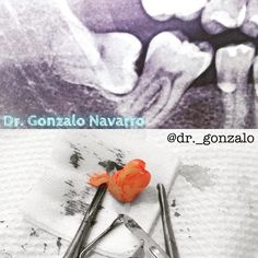 Cordal del día... Con la Dra. Sofana Silva... @sofy198527 #nicaragua #dentistry #oralsurgery #nopain by dr._gonzalo Our Oral Surgery Page: http://www.myimagedental.com/services/oral-surgery/ Google My Business: https://plus.google.com/ImageDentalStockton/about Our Yelp Page: http://www.yelp.com/biz/image-dental-stockton-3 Our Facebook Page: https://www.facebook.com/MyImageDental Image Dental 3453 Brookside Road Suite A Stockton CA 95219 (209) 955-1500 Mon - Fri: 8am - 5pm…