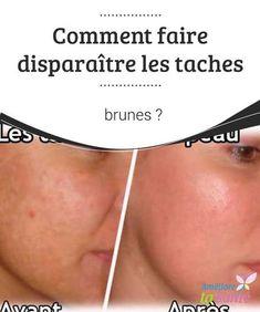 Comment faire #disparaître les #taches brunes ? #Beaucoup souffrent des taches #brunes qui apparaissent sur la peau du corps ou du #visage ! Venez découvrir nos astuces pour vous en débarrasser.