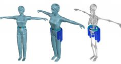 Wearable tech could prevent falls-based injuries in the elderly.