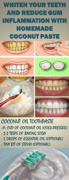 With This Homemade Recipe You can Eliminate Tartar and Gingivitis