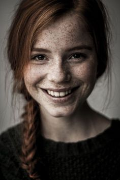 women with freckles