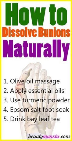 Get to know how to dissolve bunions naturally with 5 natural remedies Bunions are outward protrusions of the joint of the big toe They are caused by different factors inc. Natural Home Remedies, Natural Healing, Holistic Healing, Bunion Remedies, Bloating Remedies, Eczema Remedies, Arthritis Remedies, Cold Remedies, Beauty Hacks