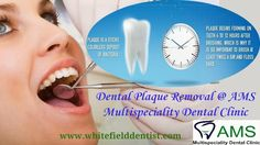AMS Multispeciality Dental Clinic provides treatment for plaque. For more details contact us