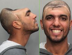 Carlos Rodriguez was arrested for attempting to solicit a prostitute. The profile shot showed the man's striking cranial cavity, the unfortunate result of a deformity or an accident