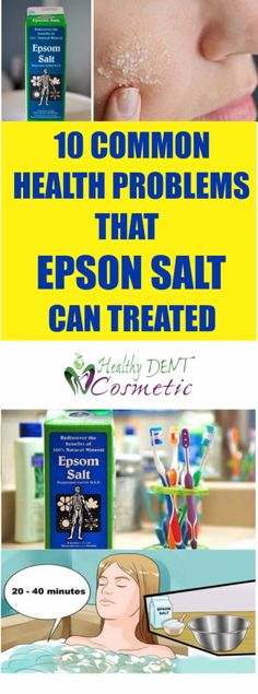 10 Common Health Problems That Can Be Treated Using Epsom Salt - HealthyOne Epsom Salt Cleanse, Healthier You, Happy People, Health Problems, Health And Nutrition, Health Remedies, Stay Fit, Healthy Life