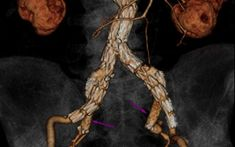Health Imaging is a leading news website that reflects the clinical, informatics and practice management considerations involved with medical imaging. Abdominal Aortic Aneurysm, Brain Aneurysm, Cleveland Clinic, Medical Imaging, Body Systems, Anatomy And Physiology, Radiology, Ultrasound, Health Care