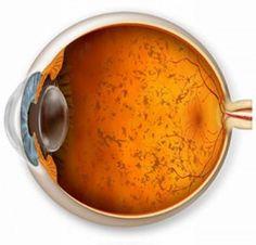 il THC della marijuana può impedire la perdita della vista - OverGrow