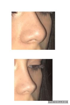 - Who makes the best candidate for a nonsurgical nose job? Try not to be a casualty of such risky techniques like surgery scan cautiously for some best and devoted stage attested in Asian nose job. ARIANA GRANDE 2009 / 2018 Pimple Inside Nose Hurts So Bad Nose Plastic Surgery, Nose Surgery, Celebrity Plastic Surgery, Bulbous Nose, Pretty Nose, Rhinoplasty Before And After, Beauty Makeup, Hair Beauty, Nose Shapes