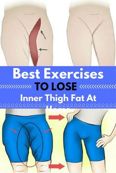 Some Magic Moves to Lose Inner Thigh Fat, You must Try!!!