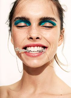 Las 6 preguntas que todo el mundo tiene del blanqueamiento dental