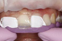 Dental Composite Comparison: Venus Diamond vs. Estelite Omega