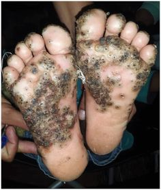 Girl's feet infested with parasitic sand fleas after running through pigsty barefoot Sand Fleas, After