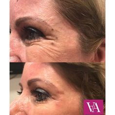 Above is one of our favourite clients, who had her crows feet treated using botu...