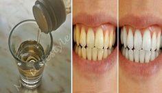 """O vinagre de maçã é famoso por suas surpreendentes propriedades medicinais.Você já sabia disso, certo?Mas há uma coisa que talvez você não saiba: vinagre de maçã pode ser utilizado para """"iluminar"""" seus dentes."""