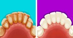 Oral Health, Dental Health, Dental Care, Teeth Health, Health Care, Teeth Whitening Remedies, Natural Teeth Whitening, Plaque Removal, Banana Drinks