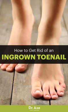 Natural Ways To Get Rid Of An Ingrown Toenail