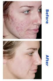 What Is The Best Way To Get Rid Of Acne Scars