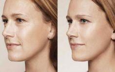 Ако и вие иматебръчки на лицето, опитайте тази проста маска, която според думите на милиони жени наистина е ефективна. Необходими съставки: