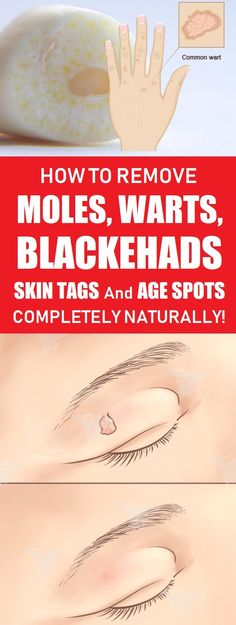 How to Remove Moles, Warts, Blackheads, Skin Tags, and Age Spots Completely Naturally! home remedies for skin tags Get Rid Of Warts, Remove Warts, Remove Stains, How To Remove Moles, Remove Skin Tags Naturally, Skin Moles, Mole Removal, Skin Tag Removal Diy, Hair Removal