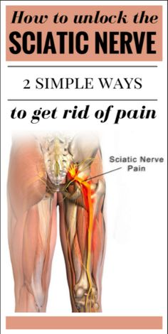 How To Unblock the Sciatic Nerve: 2 Simple Ways of Relieving the Pain #fibromyalgia
