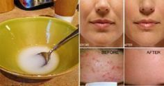 After washing your face with this remedy, you will have no acne, reduced wrinkles, and no more sagging skin! Baking soda and coconut oil both have tons of benefits, but they can transform your skin! I (Baking Face Coconut Oil) Beauty Care, Diy Beauty, Beauty Skin, Health And Beauty, Beauty Hacks, Sagging Skin, Wash Your Face, Tips Belleza, Acne Scars