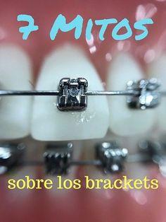Orthodontics Marketing, Black Braces, Braces Tips, Teeth Braces, Social Media, Skin Care, Humor, Instagram, Angel
