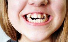 Style, Balance, Harmony – Three Worthy and Moral Causes to Straighten Crooked Teeth!
