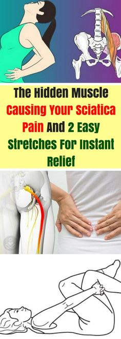 Natural Cures for Arthritis Pain - - The Hidden Muscle Causing Your Sciatica Pain And 2 Easy Stretches For INSTANT Relief Arthritis Remedies Hands Natural Cures Sciatica Stretches, Sciatica Pain Relief, Sciatic Pain, Easy Stretches, Back Pain Exercises, Back Pain Relief, Cure For Sciatica, Sciatica Pain Treatment, Sciatica Symptoms