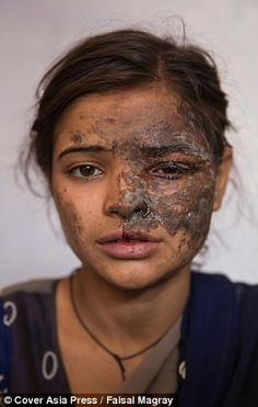 Khushboo suffered serious burns to her face as a result of the acid attack
