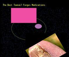 Otc toenail fungus medication - Nail Fungus Remedy. You have ...