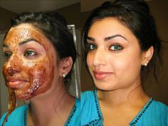 My Skincare Routine + My Secret Acne Scrub Recipe!  Acne Scrub Recipe 6 tsp sugar 1 tsp cinnamon powder 3 tsp lemon juice (fresh) 1 tsp almond oil 1 tsp honey