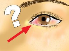 Your Eyes Are Mirror To Your Health – 8 Things Your Eyes Can Tell You About Your Health